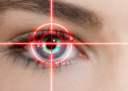 Lasik technology